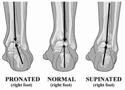 Do you pronate, supinate, or have a neutral foot condition?